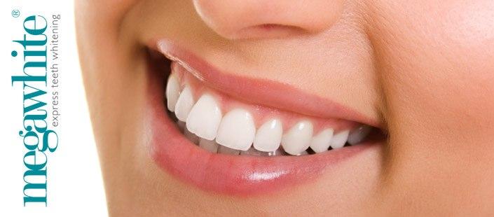 Hampaiden valkaisuhoito
