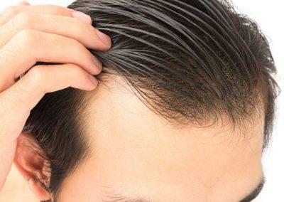 PRP- plasmahoito hiustenlähdön ennaltahkäisyyn